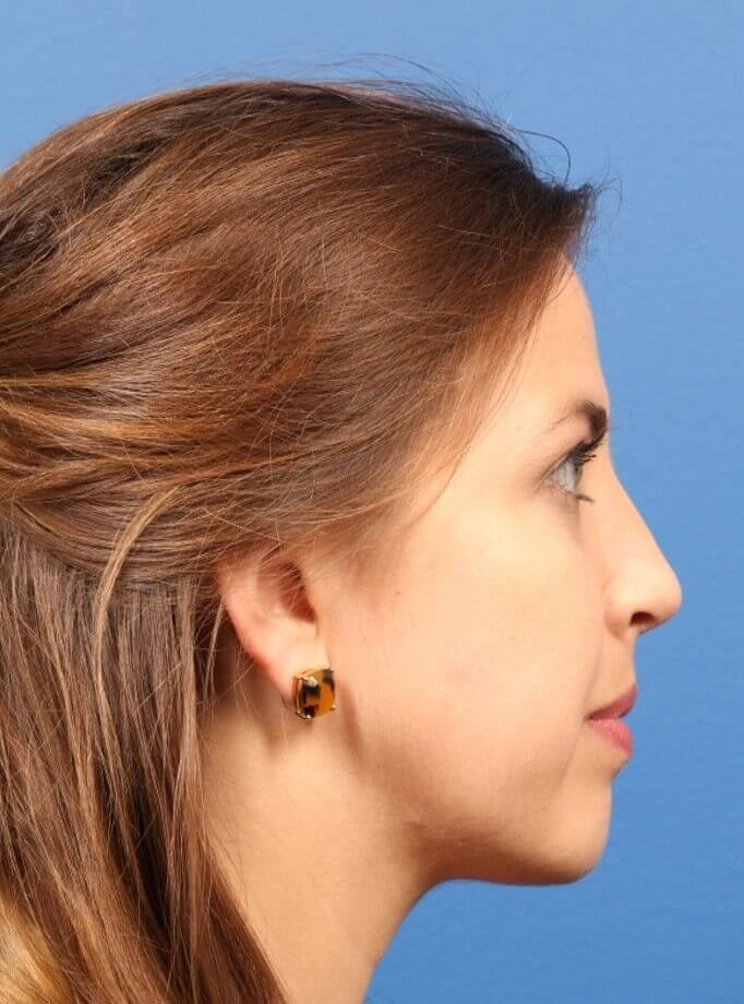 Rhinoplasty w/chin implant After