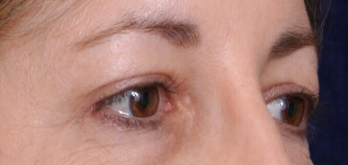Endoscopic Browlift After