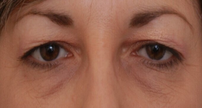 Endoscopic Browlift Before