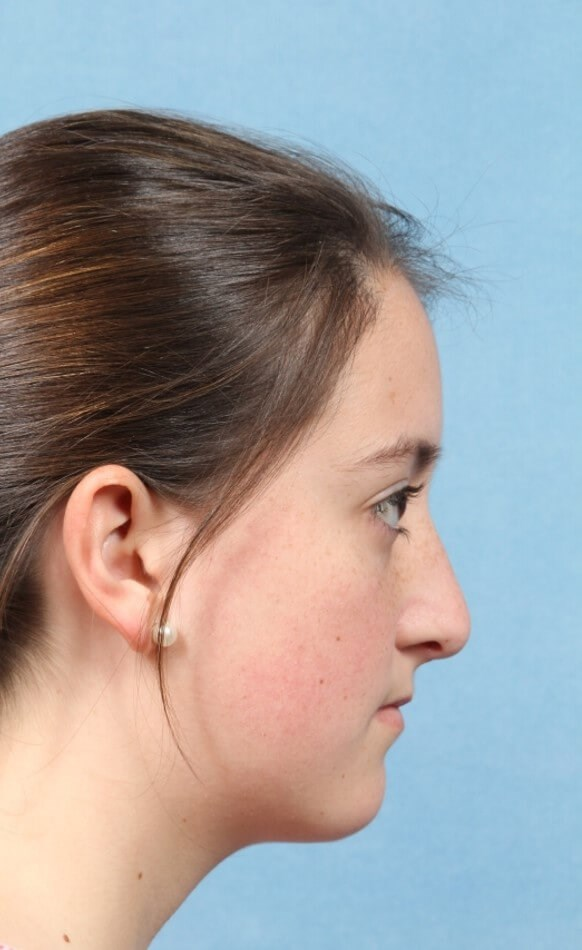 Rhinoplasty After