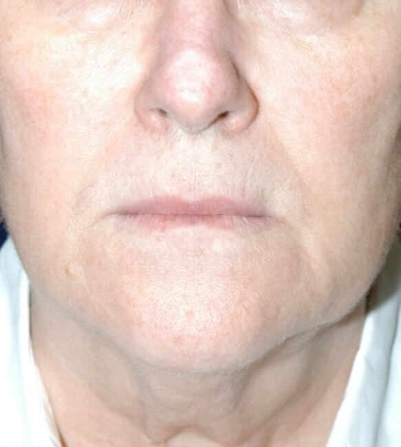 Face/neck lift Before