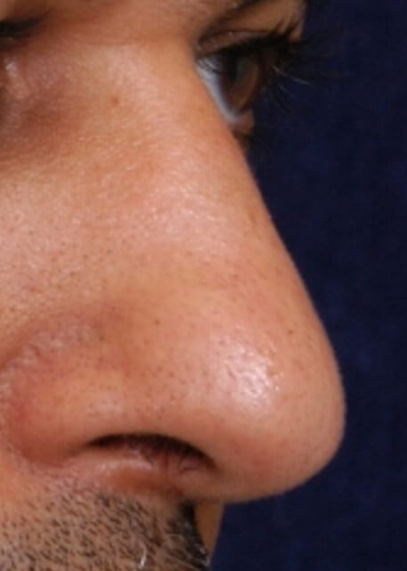 Nasal Reconstruction After
