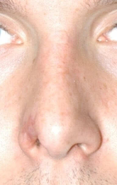 Nasal Reconstruction Before
