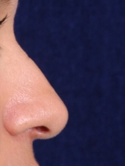 Ethnic Rhinoplasty Before