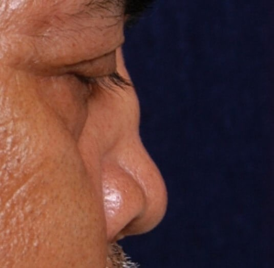 Houston Revision Rhinoplasty Before