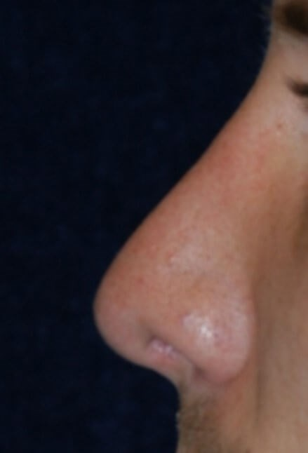 Houston Rhinoplasty After