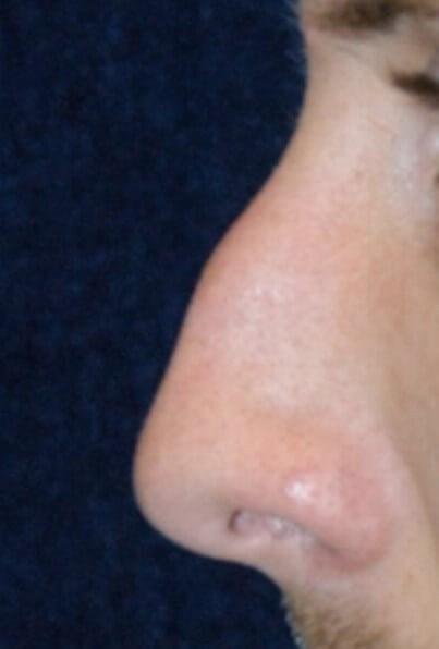Houston Rhinoplasty Before