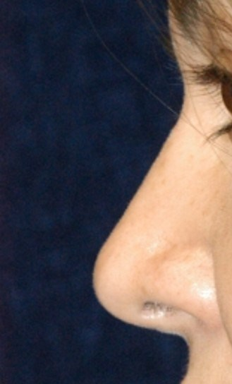 Latino Rhinoplasty After