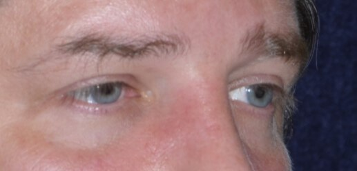 Lower Eye Filler Before