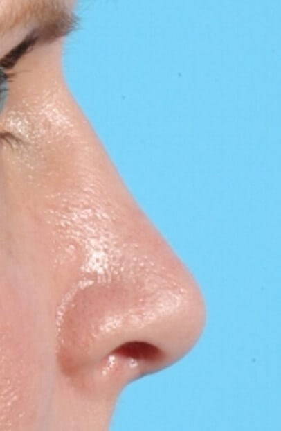 Cosmetic Rhinoplasty After
