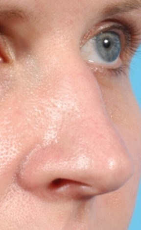 Cosmetic Rhinoplasty Before