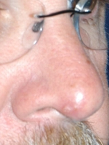 Skin Cancer Reconstruction Before
