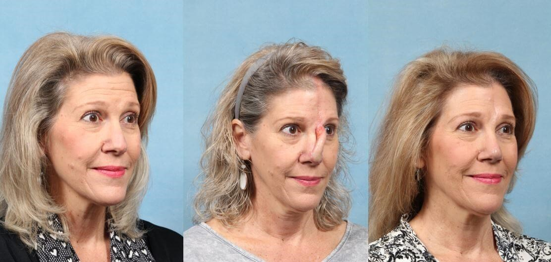 Skin Cancer Reconstruction After