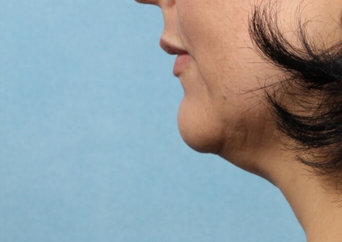 Kybella - Chin Contouring Before