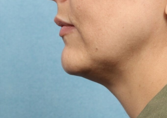 Kybella - Chin Contouring After
