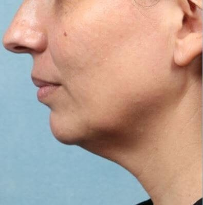 Kybella treatment Before