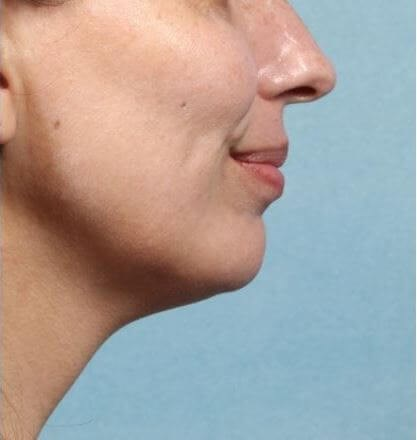 Kybella treatment After