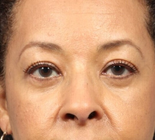 Endoscopic Brow lift After