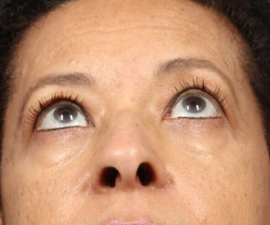 Endoscopic Brow lift Before