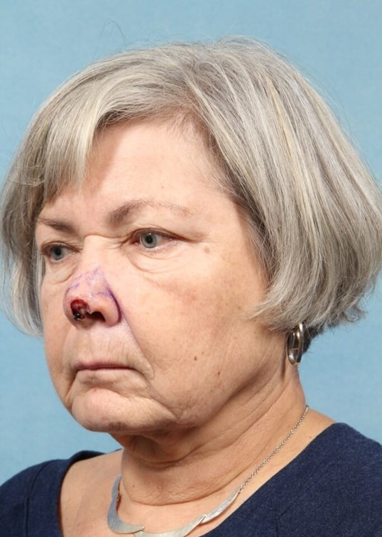 Nasal Cancer Reconstruction Before