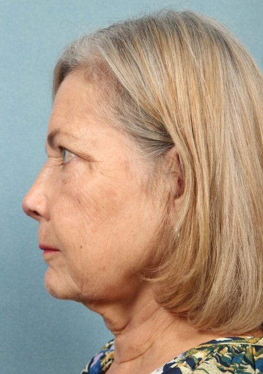 Nasal Cancer Reconstruction After